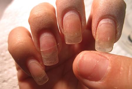 аллергия на покрытие гель лаком